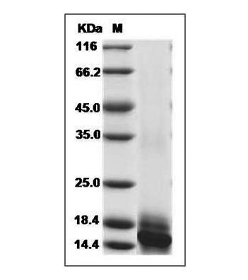 This is SDS-PAGE analysis of Human IL-15 protein, His Tag