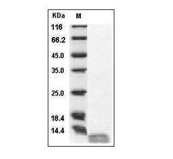 This is SDS-PAGE analysis of Human IL-13 protein