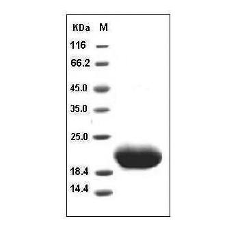 This is SDS-PAGE analysis of Human IL-6 protein