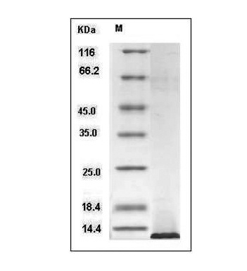 This is SDS-PAGE analysis of Human IGF1 protein