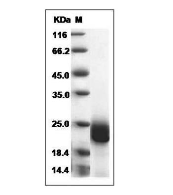 This is SDS-PAGE analysis of Human IFN-beta protein
