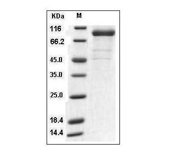 This is SDS-PAGE analysis of Human IL-35 (IL-12A & IL-27B) protein, Fc Tag