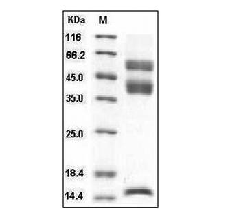 This is SDS-PAGE analysis of Human Latent TGF-beta 1 protein, His Tag