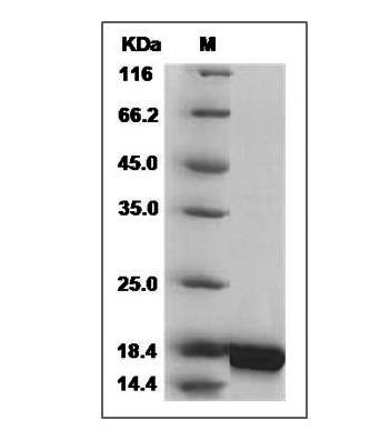 This is SDS-PAGE analysis of Human IL-10 protein