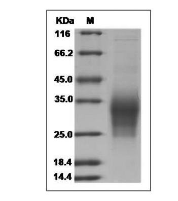 This is SDS-PAGE analysis of Human IL-31 protein, His Tag