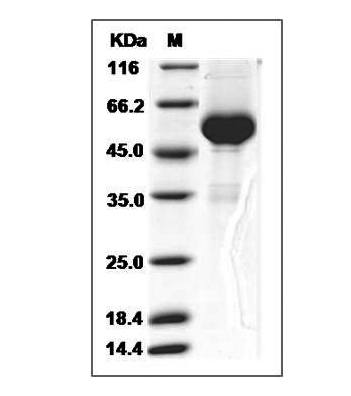 This is SDS-PAGE analysis of Human RANKL protein, Fc Tag