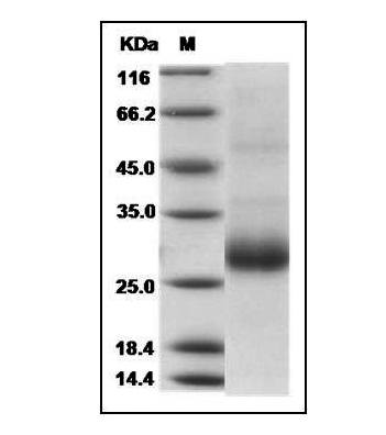 This is SDS-PAGE analysis of Human RANKL protein