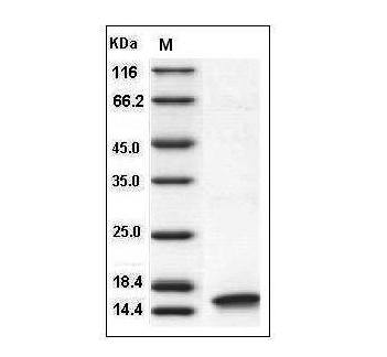 This is SDS-PAGE analysis of Human IL-2 protein