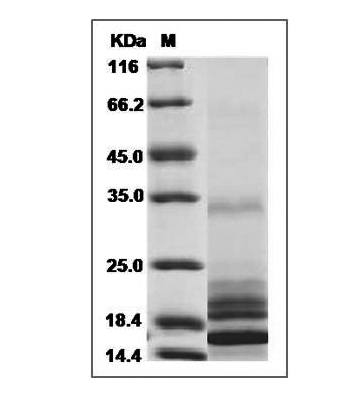 This is SDS-PAGE analysis of Human IL-17 protein