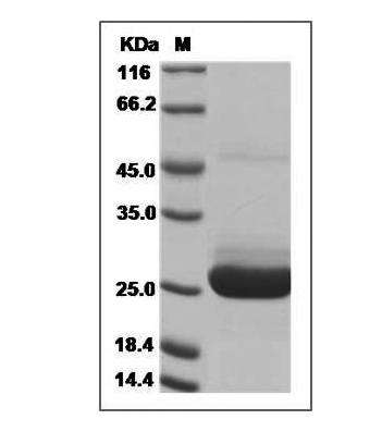 This is SDS-PAGE analysis of Human IL-5 protein