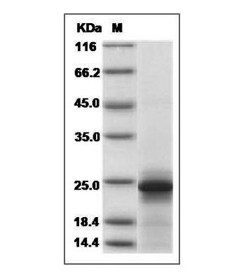 This is SDS-PAGE analysis of Mouse IL-6 protein
