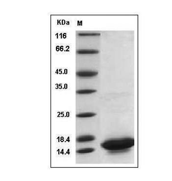 This is SDS-PAGE analysis of Mouse IL-21 protein