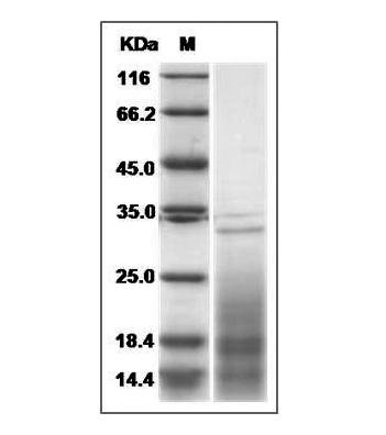 This is SDS-PAGE analysis of Mouse IL-13 protein
