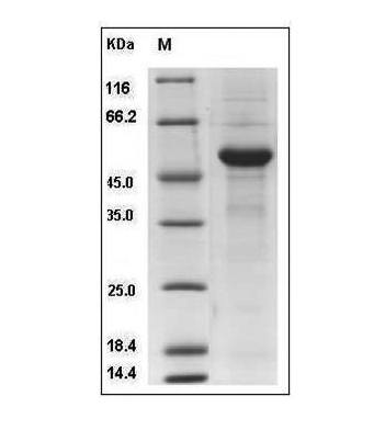 This is SDS-PAGE analysis of Mouse RANKL protein, Fc Tag