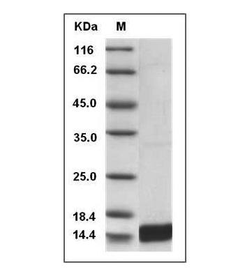 This is SDS-PAGE analysis of Mouse IL-17 protein