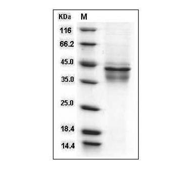 This is SDS-PAGE analysis of Human IL- 12 (IL-12A & IL-12B) protein