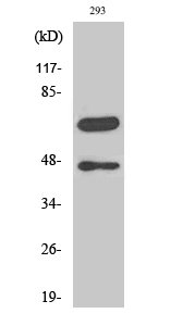 Cleaved-Caspase-8 (D384) Polyclonal Antibody Released