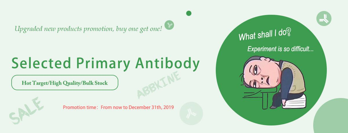 Abbkine newly released Selected Primary Antibody will shock you!