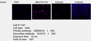 Superkine™ Enhanced Antibody Diluent (BMU103-CN) was compared to a generic antibody diluent (TBST) and a comparable competitor (Brand B, Brand A) in a WB test